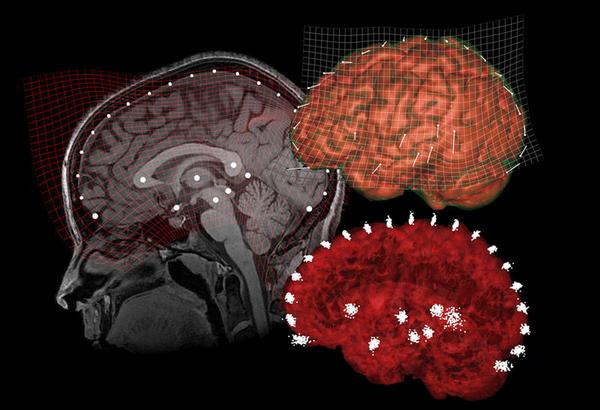 Cérebro e velocidade mental
