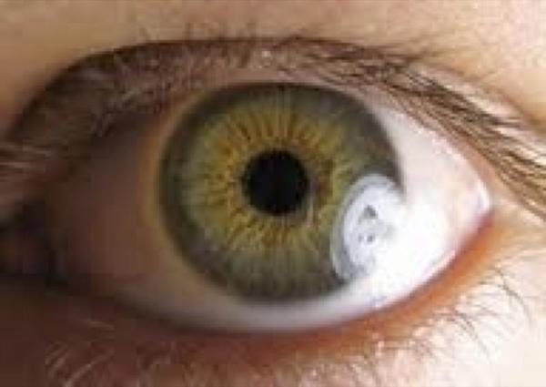 Olhe nos meus olhos