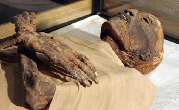 Embalsaman viva por engano para uma mulher em um hospital russo