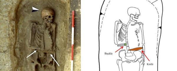 Encontram um esqueleto medieval com uma prótese em forma de lâmina