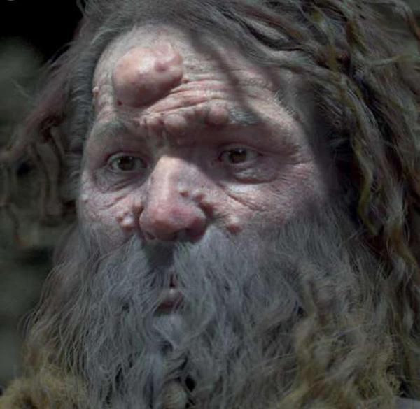 Reconstroem o rosto de um Homem de cromagnon, que tinha tumores no rosto